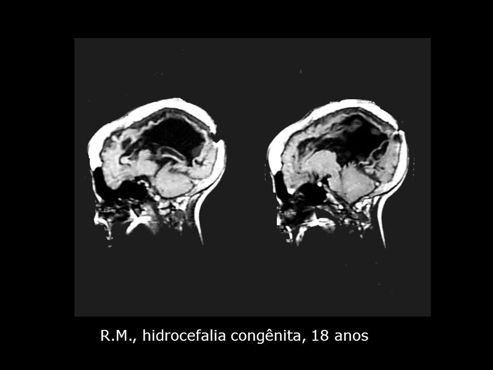 R.M., hidrocefalia congênita, 18 anos