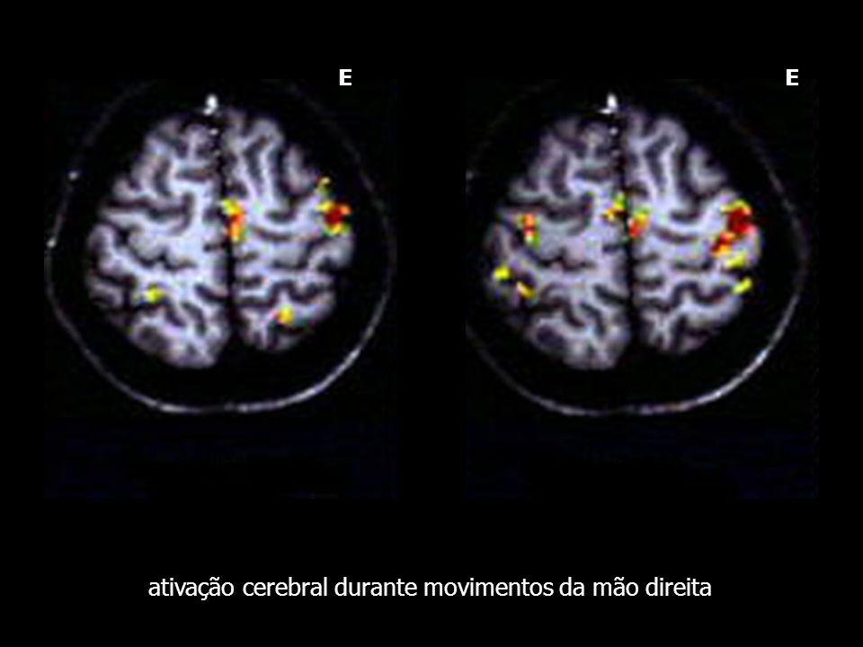 ativação cerebral durante movimentos da mão direita