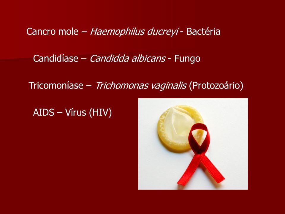 Cancro mole – Haemophilus ducreyi - Bactéria