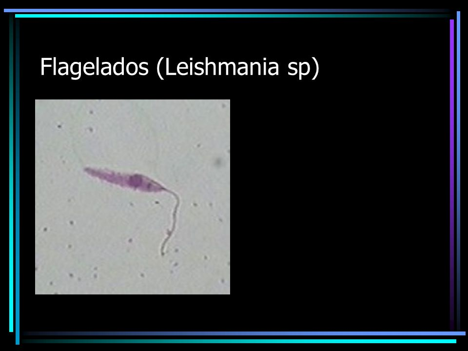 Flagelados (Leishmania sp)