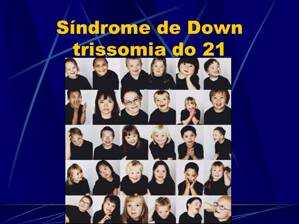 Síndrome de Down trissomia do 21