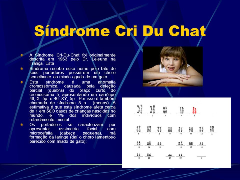 Síndrome Cri Du Chat A Síndrome Cri-Du-Chat foi originalmente descrita em 1963 pelo Dr. Lejeune na França. Esta.