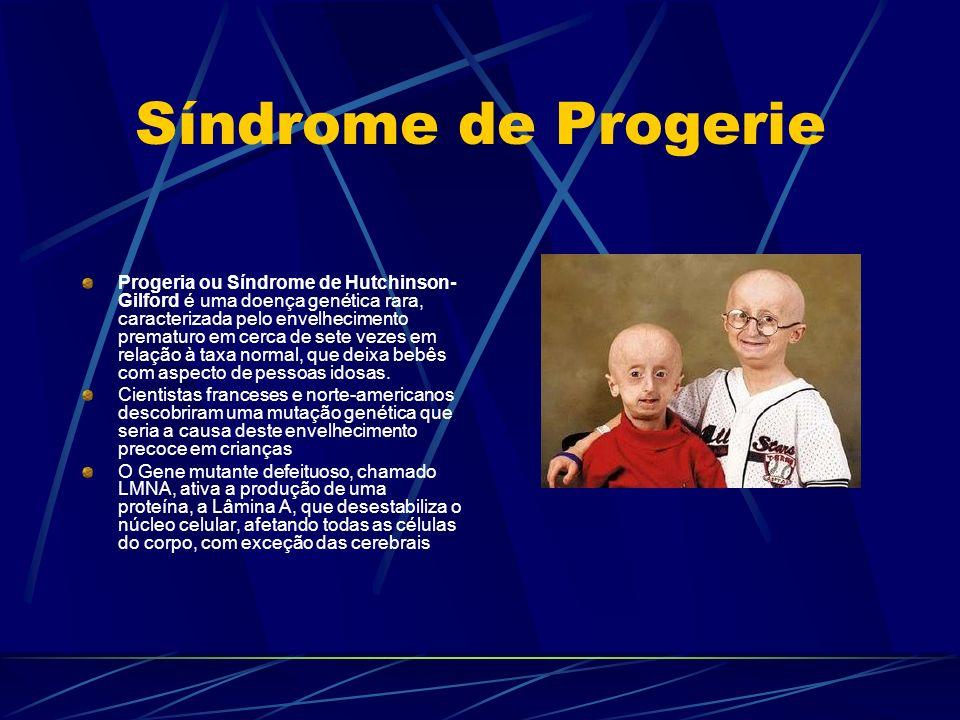 Síndrome de Progerie