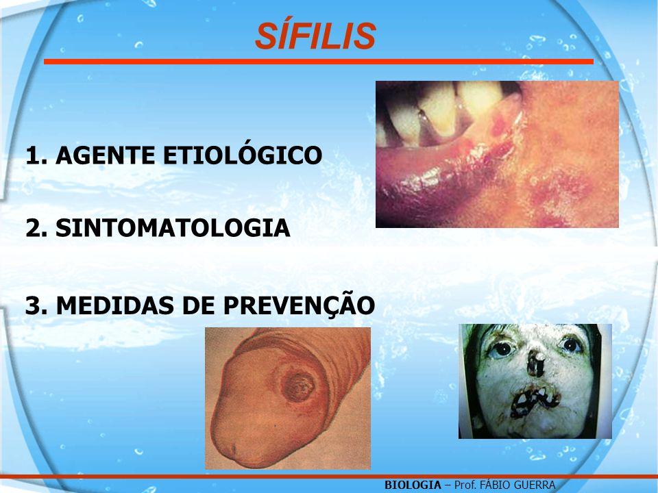 SÍFILIS 1. AGENTE ETIOLÓGICO 2. SINTOMATOLOGIA 3. MEDIDAS DE PREVENÇÃO