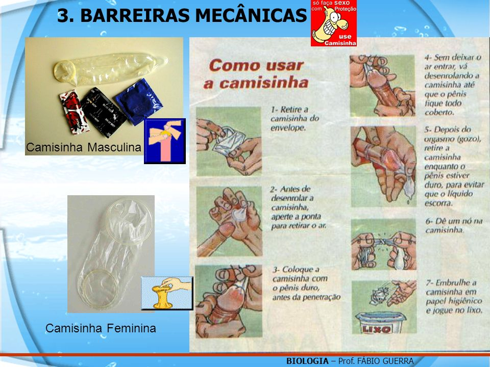 3. BARREIRAS MECÂNICAS Camisinha Masculina Camisinha Feminina