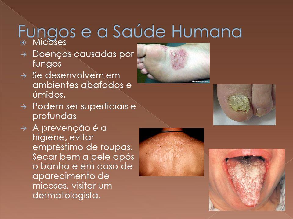 Fungos e a Saúde Humana Micoses Doenças causadas por fungos