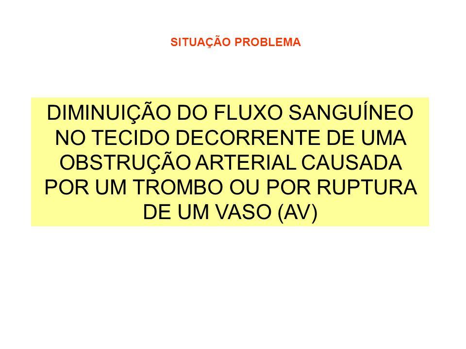 SITUAÇÃO PROBLEMA DIMINUIÇÃO DO FLUXO SANGUÍNEO NO TECIDO DECORRENTE DE UMA OBSTRUÇÃO ARTERIAL CAUSADA POR UM TROMBO OU POR RUPTURA DE UM VASO (AV)