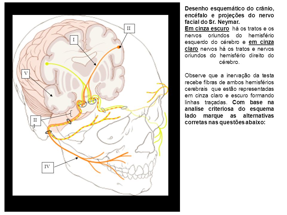 Desenho esquemático do crânio, encéfalo e projeções do nervo facial do Sr. Neymar.