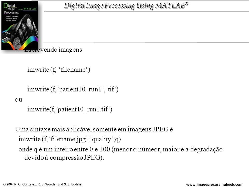 Escrevendo imagens imwrite (f, 'filename') imwrite (f,'patient10_run1','tif') ou. imwrite(f,'patient10_run1.tif')