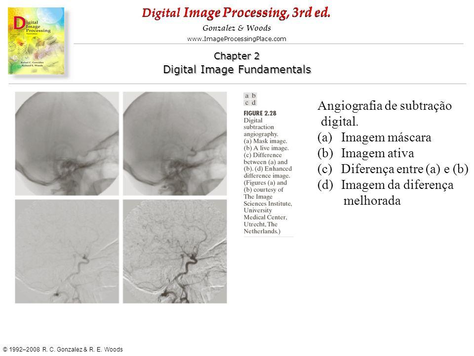 Angiografia de subtração