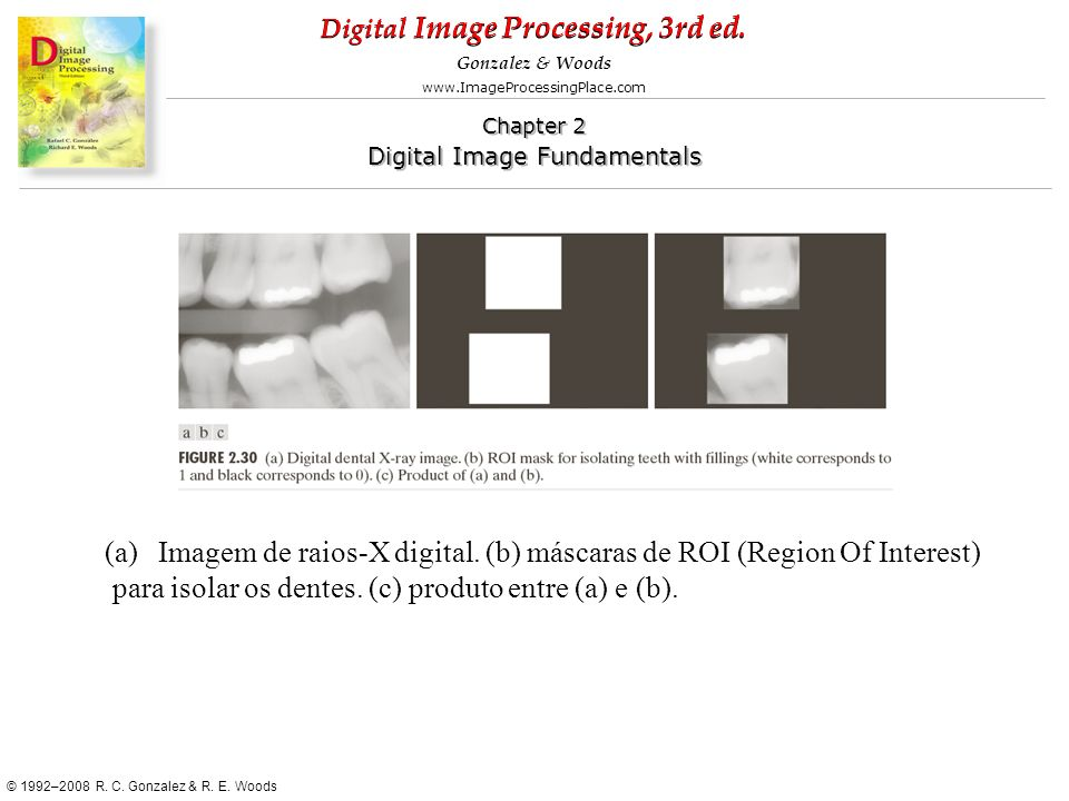 Imagem de raios-X digital. (b) máscaras de ROI (Region Of Interest)