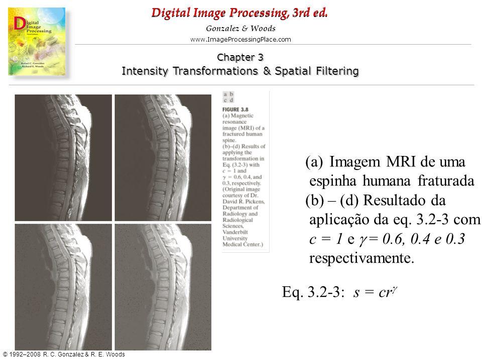 Imagem MRI de uma espinha humana fraturada. (b) – (d) Resultado da. aplicação da eq. 3.2-3 com. c = 1 e g = 0.6, 0.4 e 0.3.