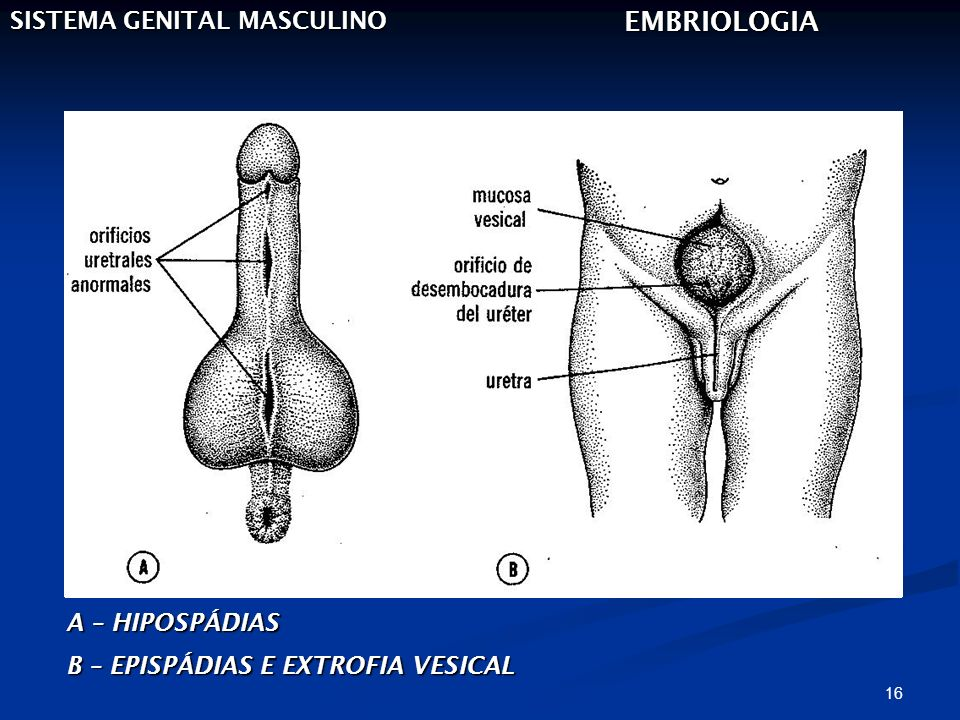 EMBRIOLOGIA SISTEMA GENITAL MASCULINO A – HIPOSPÁDIAS