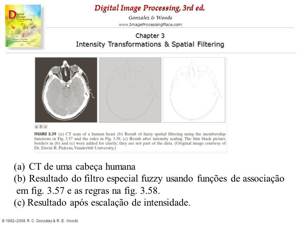 CT de uma cabeça humana Resultado do filtro especial fuzzy usando funções de associação. em fig. 3.57 e as regras na fig. 3.58.