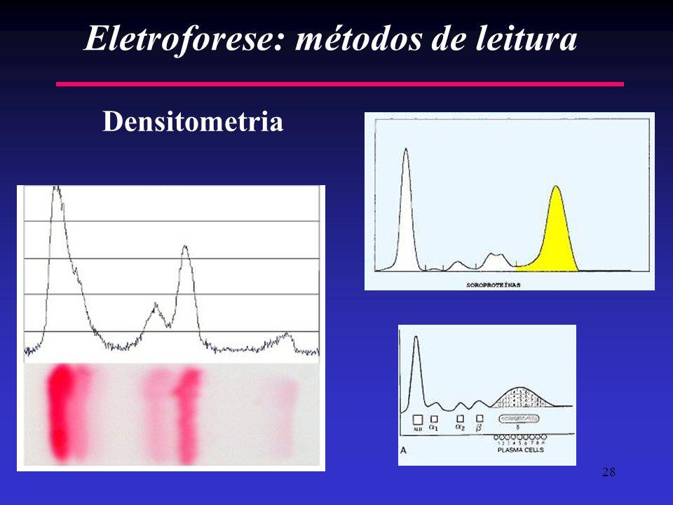 Eletroforese: métodos de leitura