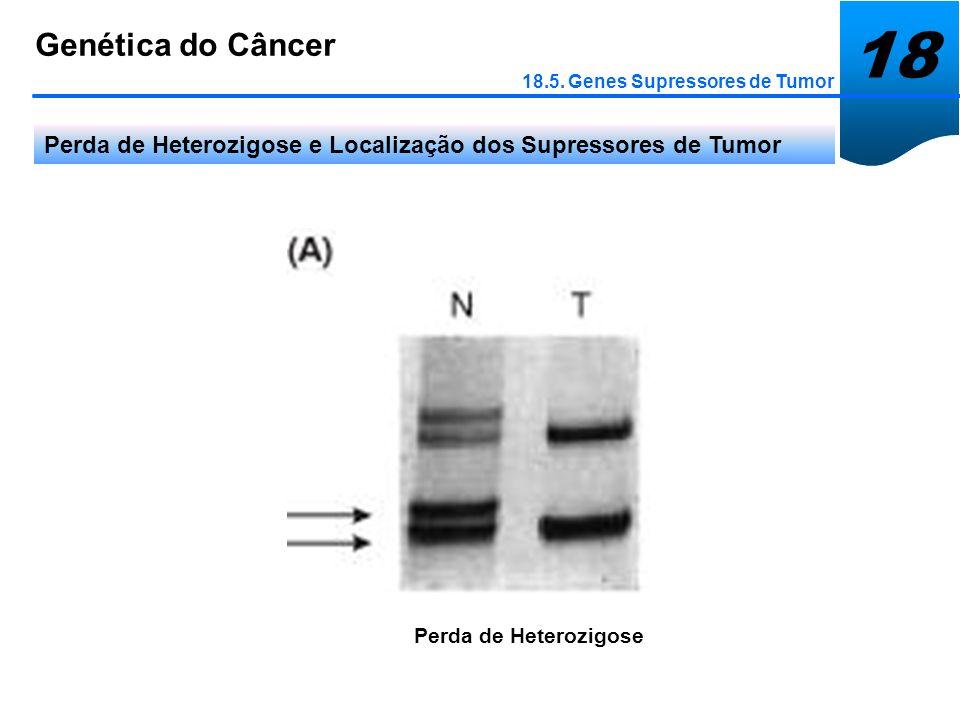 18Genética do Câncer. 18.5. Genes Supressores de Tumor. Perda de Heterozigose e Localização dos Supressores de Tumor.