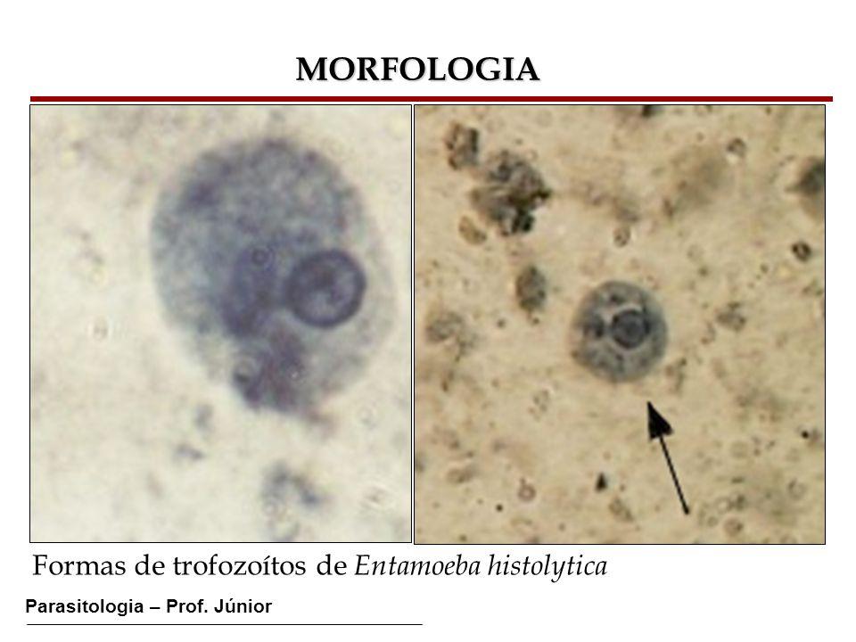 MORFOLOGIA Formas de trofozoítos de Entamoeba histolytica