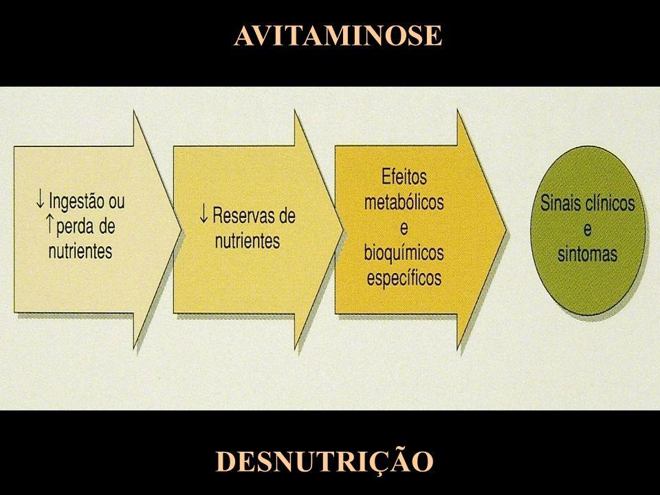 AVITAMINOSE DESNUTRIÇÃO
