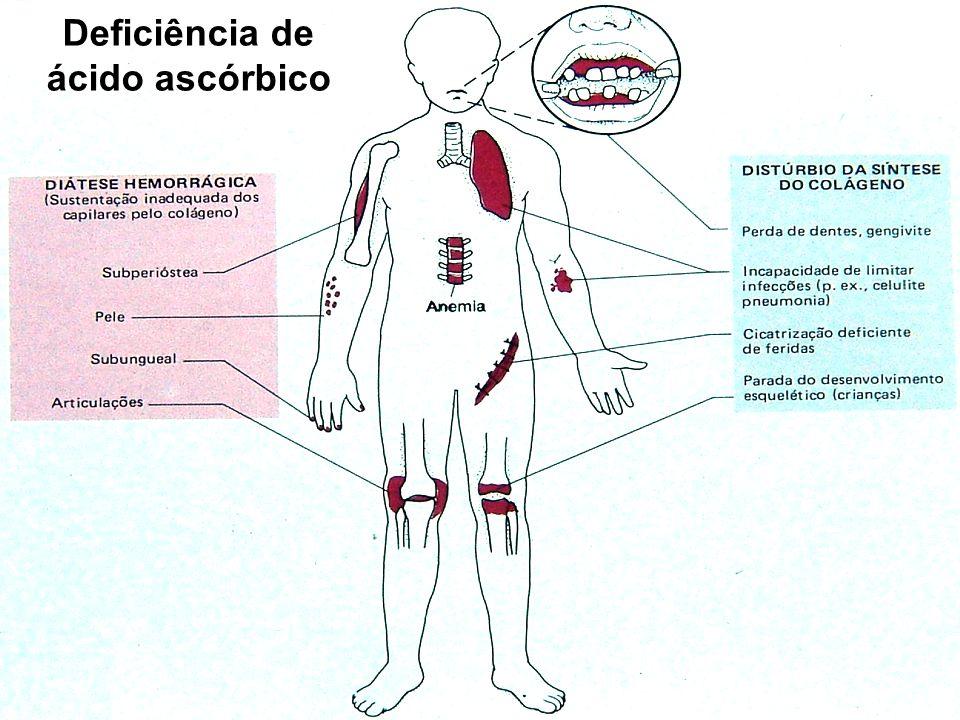 Deficiência de ácido ascórbico