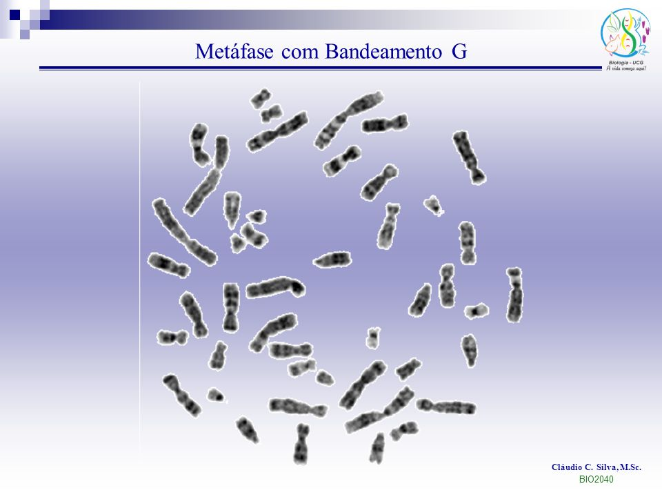 Metáfase com Bandeamento G
