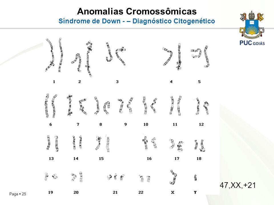 Anomalias Cromossômicas Síndrome de Down - – Diagnóstico Citogenético