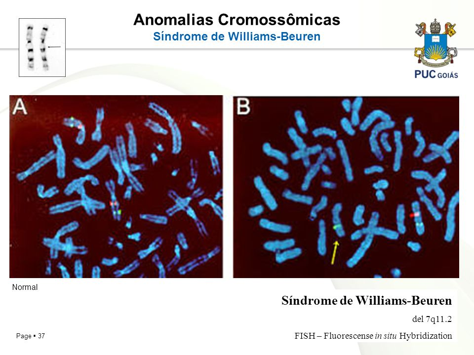 Anomalias Cromossômicas Síndrome de Williams-Beuren