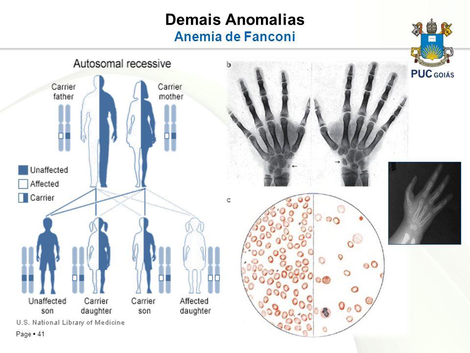 Demais Anomalias Anemia de Fanconi