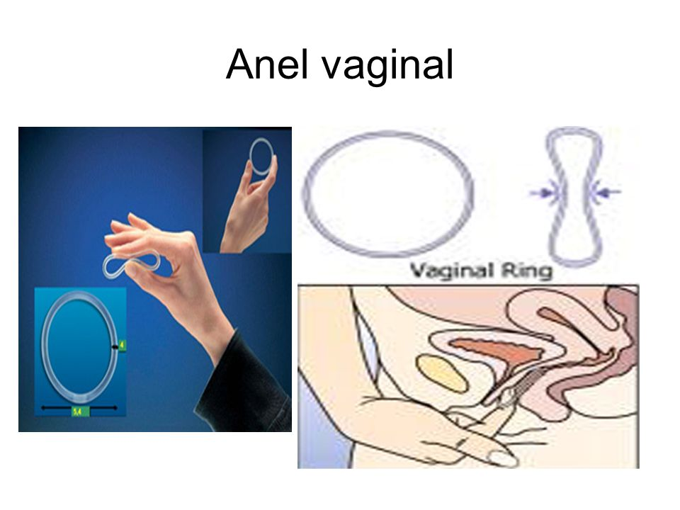 Anel vaginal