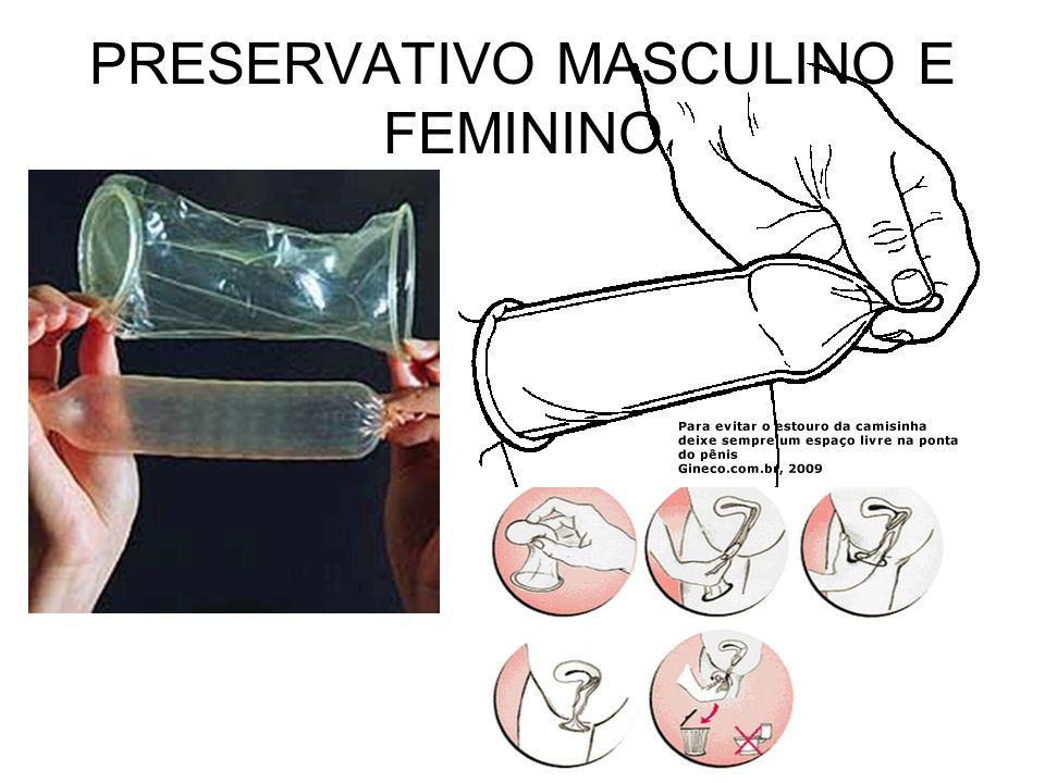 PRESERVATIVO MASCULINO E FEMININO
