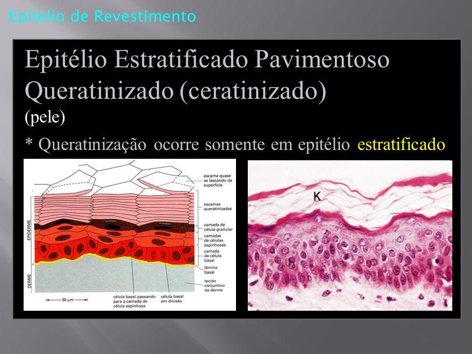 Epitélio Estratificado Pavimentoso Queratinizado (ceratinizado) (pele)