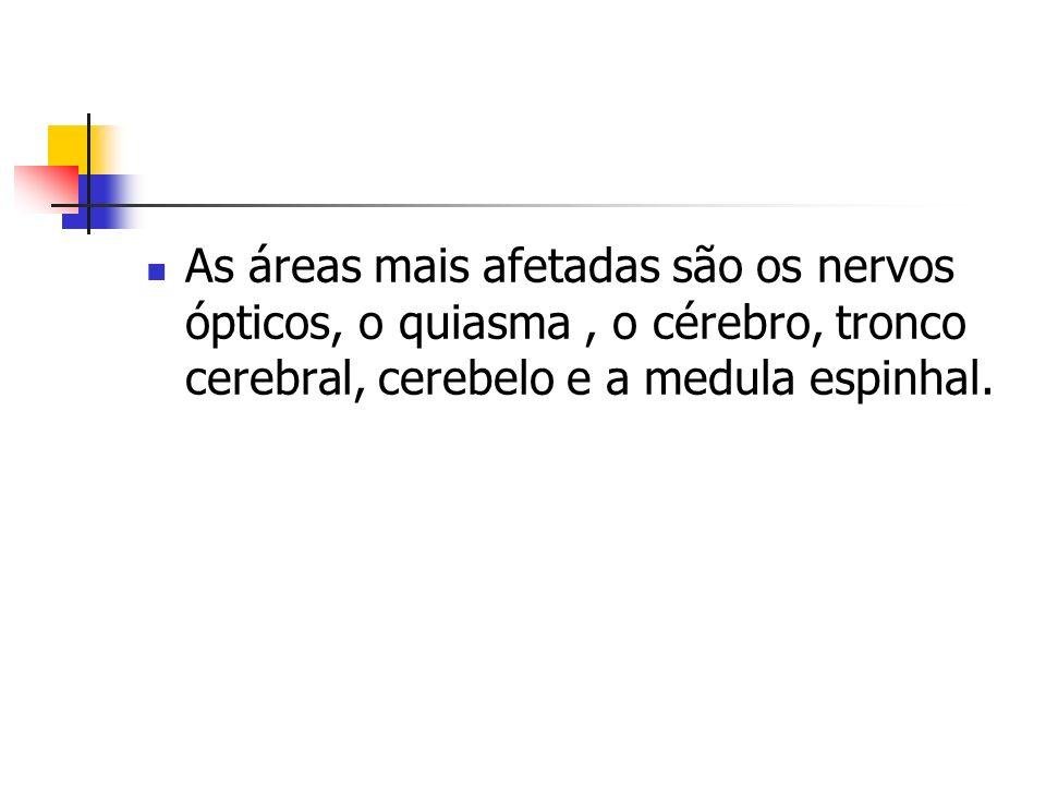 As áreas mais afetadas são os nervos ópticos, o quiasma , o cérebro, tronco cerebral, cerebelo e a medula espinhal.