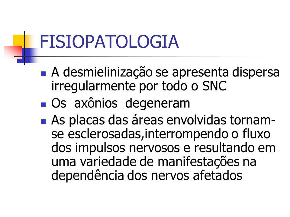 FISIOPATOLOGIA A desmielinização se apresenta dispersa irregularmente por todo o SNC. Os axônios degeneram.