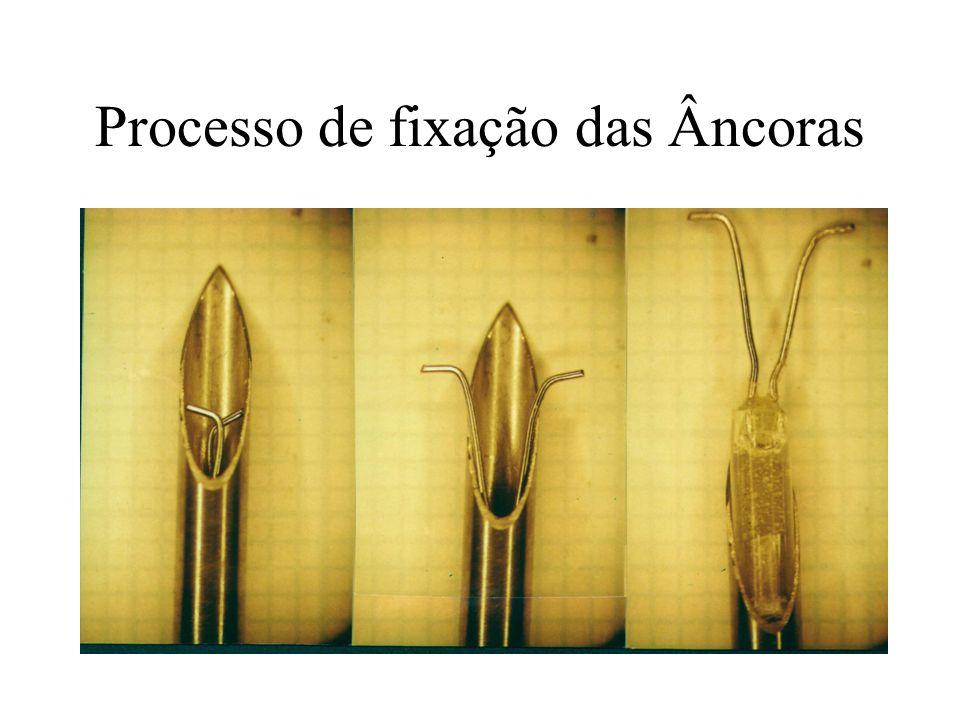 Processo de fixação das Âncoras