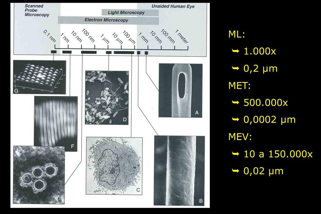 ML:  1.000x  0,2 µm MET:  500.000x  0,0002 µm MEV:  10 a 150.000x  0,02 µm