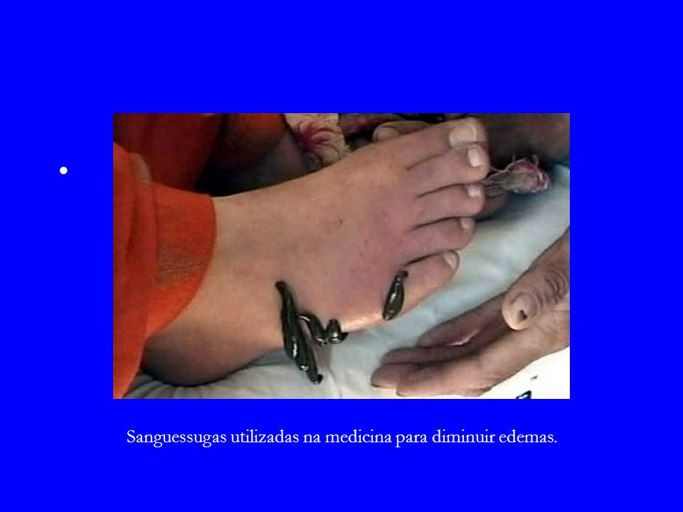 Sanguessugas utilizadas na medicina para diminuir edemas.