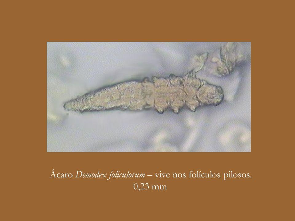 Ácaro Demodex foliculorum – vive nos folículos pilosos.
