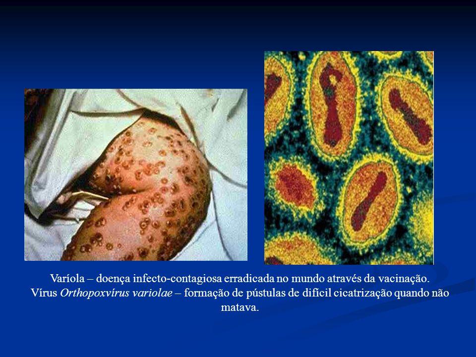 Varíola – doença infecto-contagiosa erradicada no mundo através da vacinação.