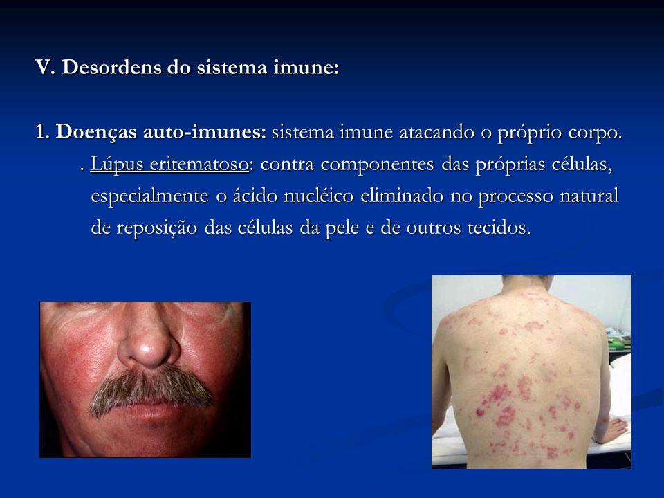 V. Desordens do sistema imune: