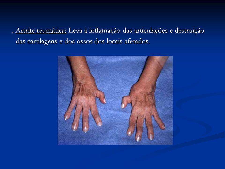 . Artrite reumática: Leva à inflamação das articulações e destruição