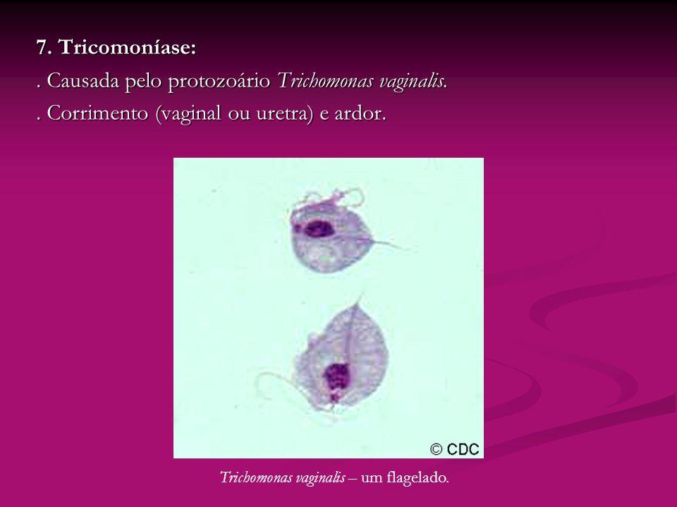 Trichomonas vaginalis – um flagelado.