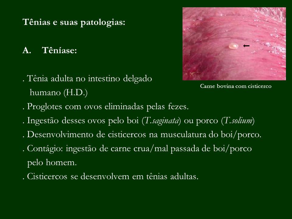Tênias e suas patologias: Têníase: . Tênia adulta no intestino delgado