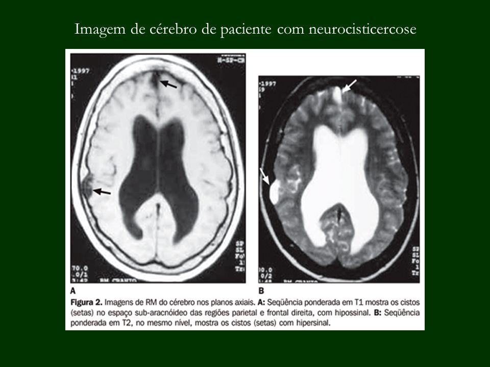 Imagem de cérebro de paciente com neurocisticercose