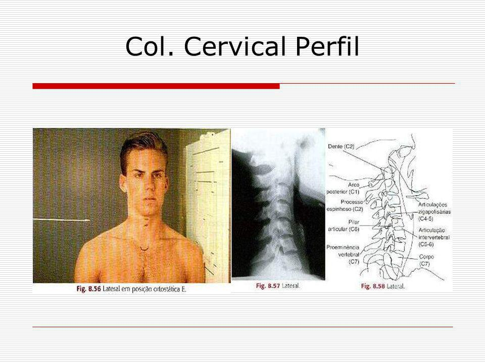 Col. Cervical Perfil