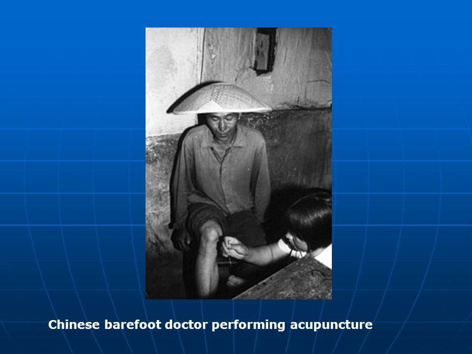 Chinese barefoot doctor performing acupuncture