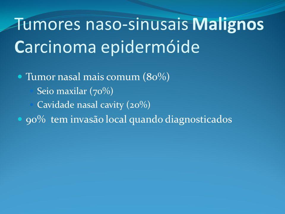 Tumores naso-sinusais Malignos Carcinoma epidermóide