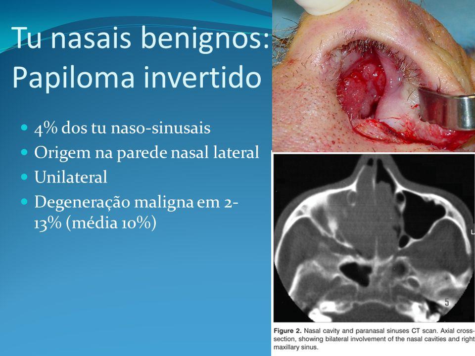 Tu nasais benignos: Papiloma invertido