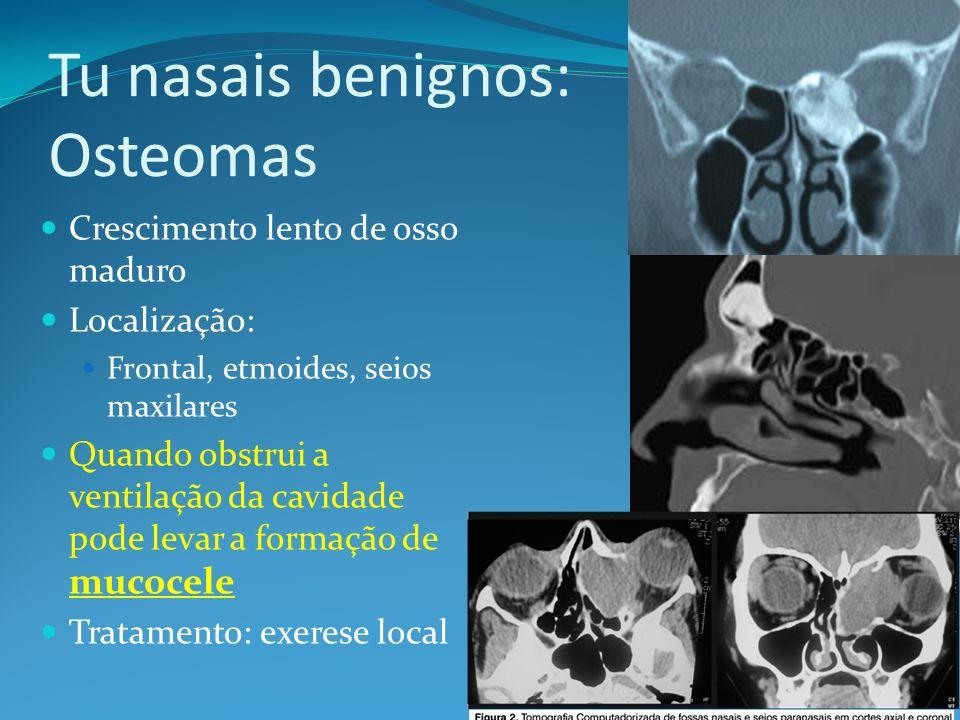 Tu nasais benignos: Osteomas