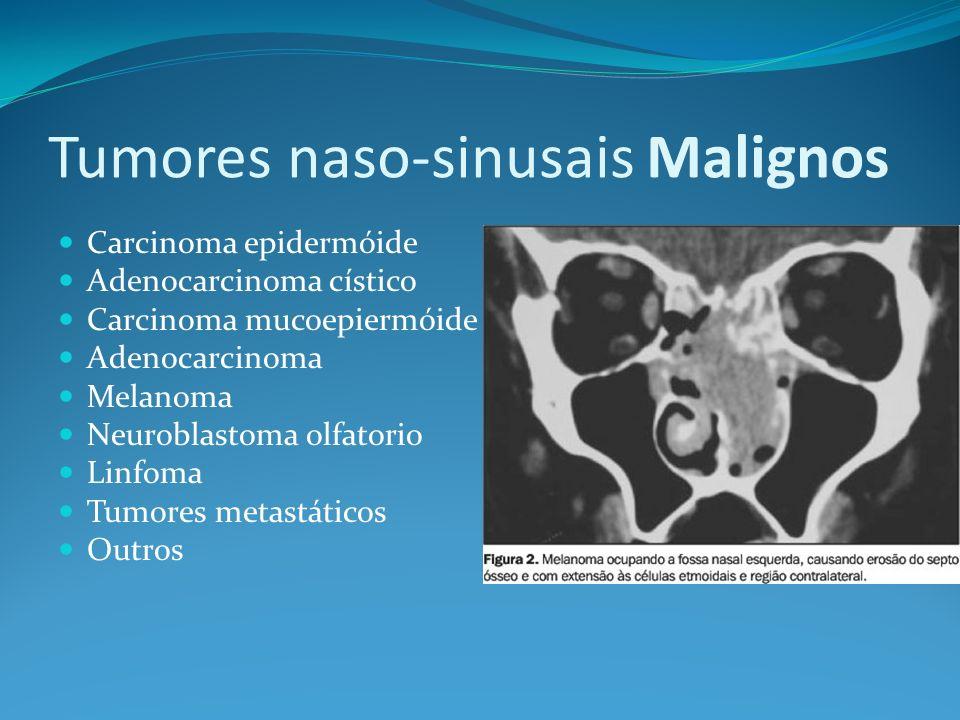 Tumores naso-sinusais Malignos