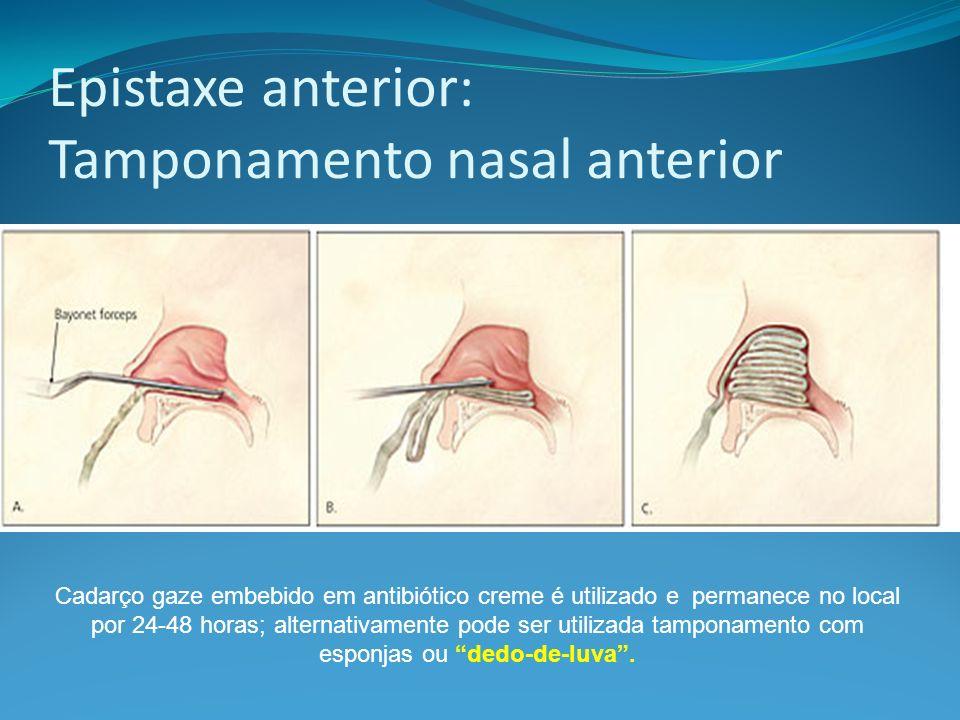 Epistaxe anterior: Tamponamento nasal anterior