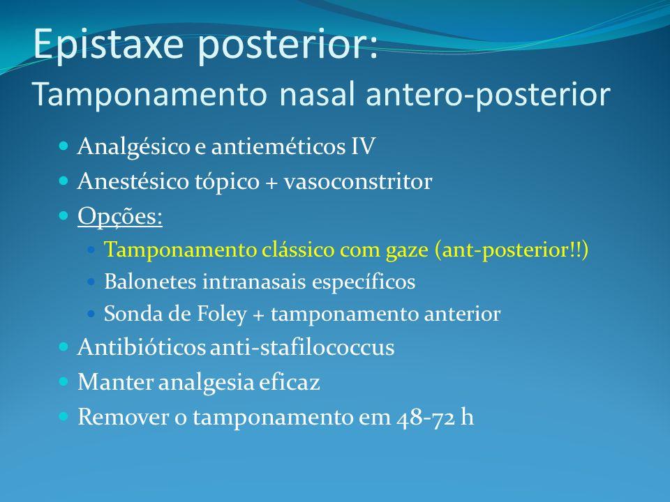 Epistaxe posterior: Tamponamento nasal antero-posterior